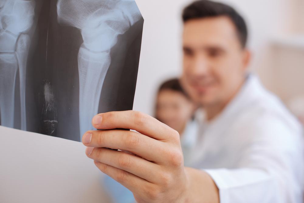 Rheumatology Arthritis