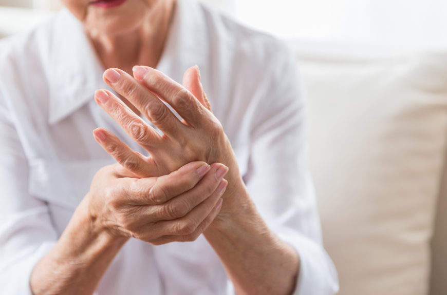 woman with rheumatoid arthritis